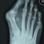 x-ray of bunion