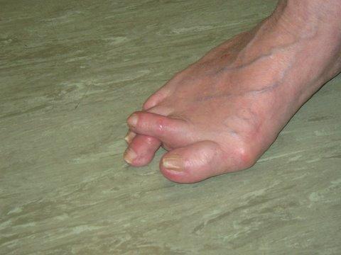 Deformed Foot From Diabetes
