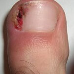 ingrown-nail2