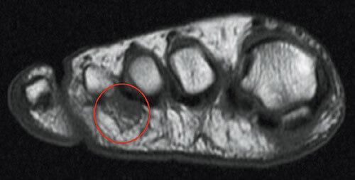 Ultrasound-scan
