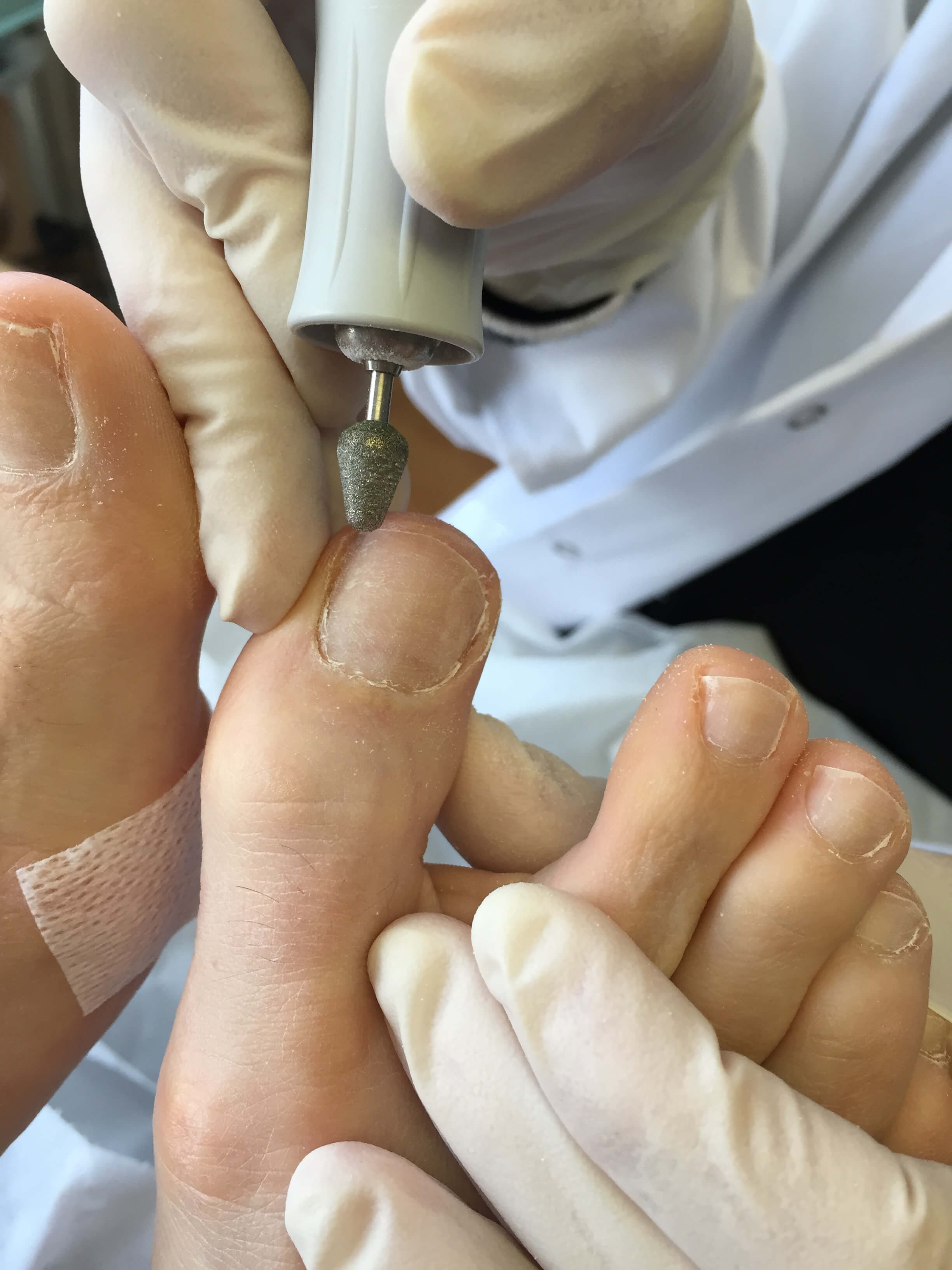 Fungal Nail Laser Treatment - Fitter Feet For LifeFitter